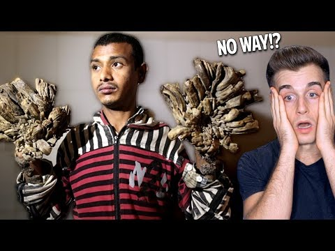 Meet The Guy Who Is Turning Into A Tree (How Is This Possible?)