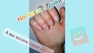 Ванночка для ногтей как отрастить ногти за 5 дней
