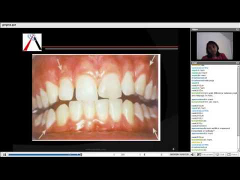 Periodontics - Gingiva and Tooth Supporting Structure