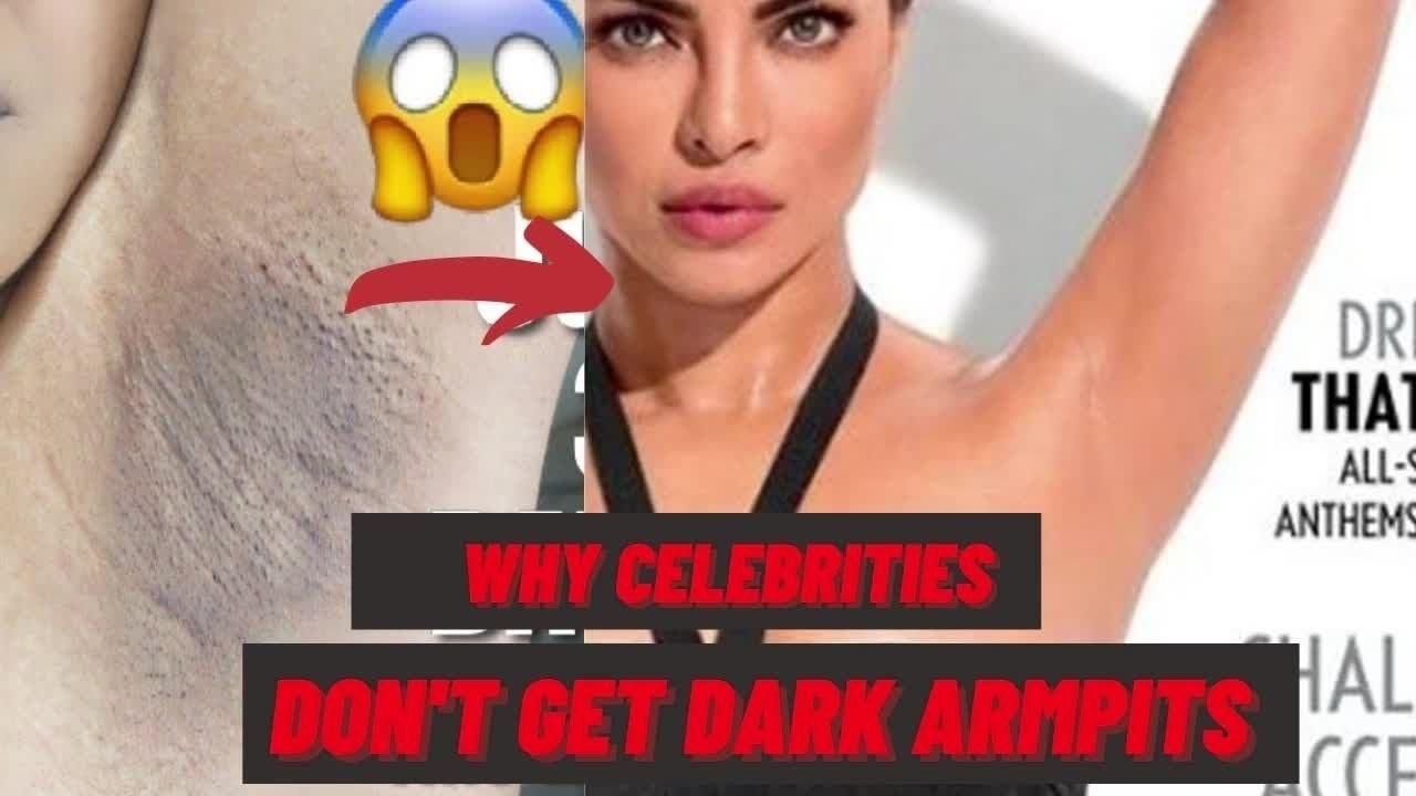 I Tried Following Celebrity's Underarm Care Routine For 3 Months  And This Happened! PART-2