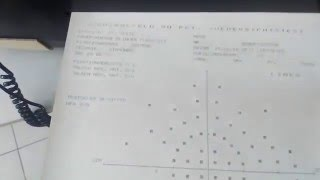 Компьютерный периметр Humphrey -Zeiss 610(Компьютерный периметр марки Humphrey -Zeiss 610,используеться в оптиках,клиниках,для обследования поля зрения..., 2016-02-15T08:03:41.000Z)