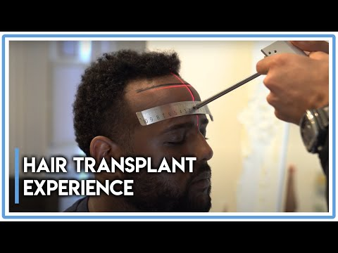 Hair Transplant Experience: Afro-American Guest From Los Angeles