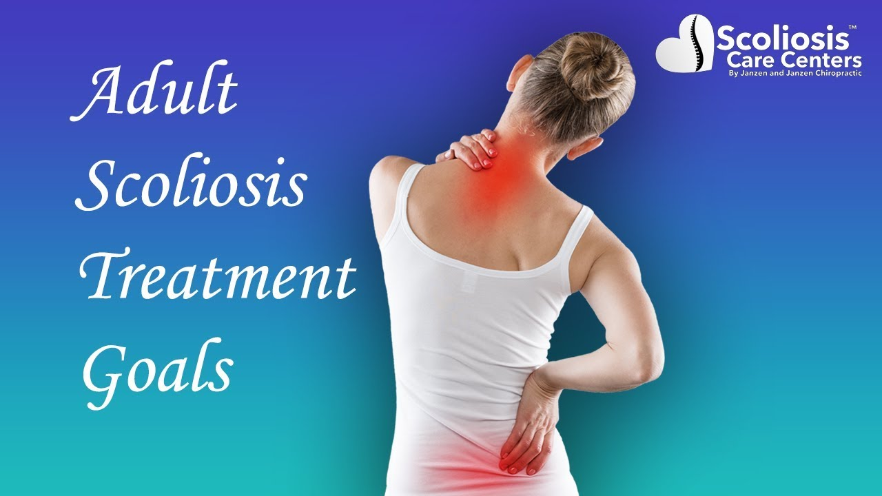 Successful Adult Scoliosis Treatment - YouTube