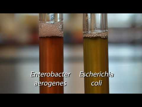Demo: Biochemical Tests