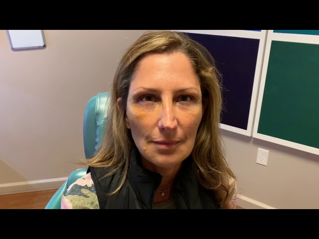 Dallas Fat Graft Eyelid Laser Recovery Video