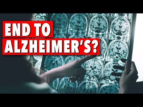Dr. Dale Bredesen The end of Alzheimer's is it possible? | Ep108