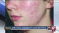 hqdefault - Acne Tablets Side Effects