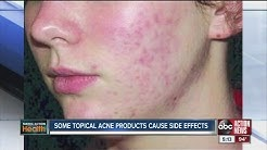hqdefault - What Are Side Effects Of Acne Pills