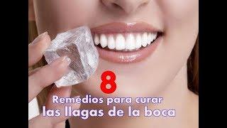 8 Remedios para curar las llagas de la boca