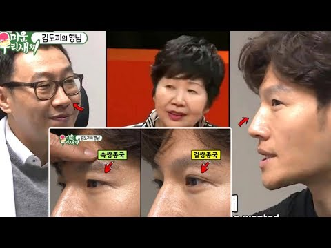 Kim Jong Kook Considers Eyelid Plastic Surgery And Reveals Secret Of His Straight Nose