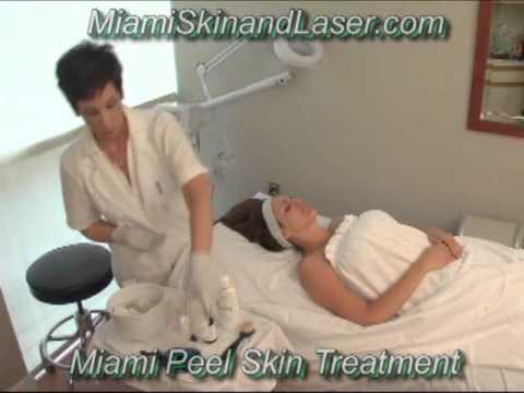 Miami Peel Glycolic Acid  Facial Peel Chemical Peels Demo Dermatologist South Beach
