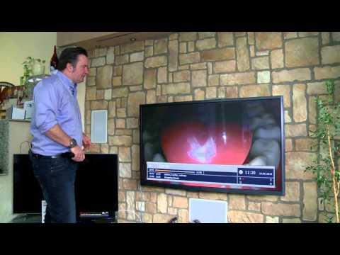 Vorstellung des SAT Empfänger VANTAGE VT 100 HD+ SMART TV
