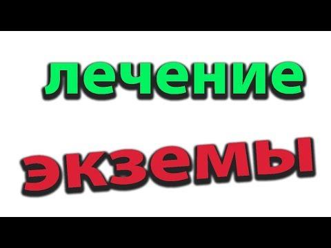Мощнейшее копеечное средство от экземы. Лечение высыпаний#малиновский