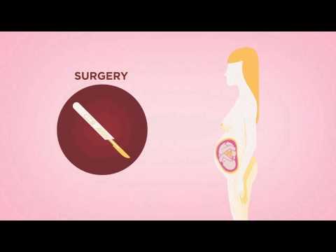 Poliklinika Harni - Liječenje karcinoma u trudnoći