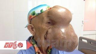 Ca phẫu thuật đặc biệt khối u khủng trên mặt   VTC