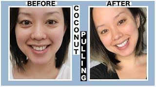 OIL PULLING COCONUT OIL | BEGINNERS HOW TO