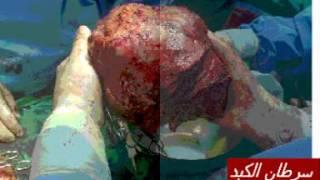 Le CANCER DU FOIE.CHC-سرطان الخلايا الكبدية