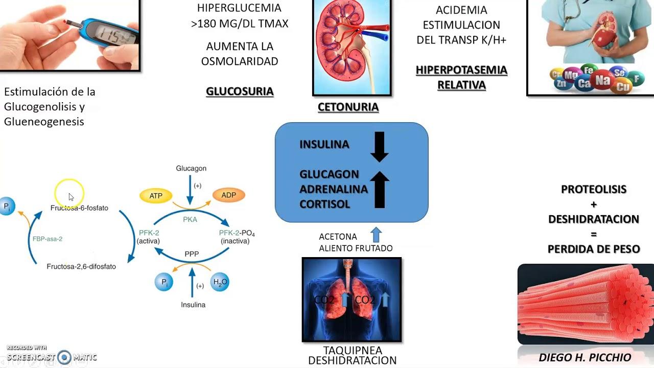 Cetoacidosis Diabetica Fisiopatologia - YouTube