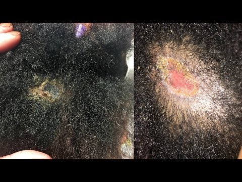 HAIRSTYLIST SENT ME TO THE EMERGENCY ROOM WITH A STAPH INFECTION! NATURAL HAIR HORROR STORY! GRAPHIC
