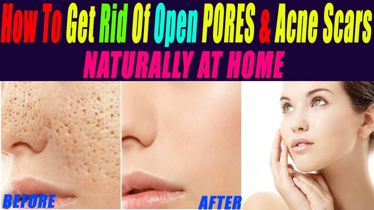 how to get rid of large open pores permanently remove acne scars naturally at home skin care