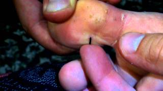 squeezing out a sea urchin needle