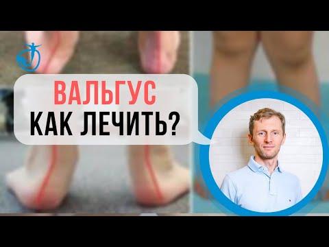 ВАЛЬГУС - Вальгусная деформация стоп у детей. Как лечить? Владимир Животов