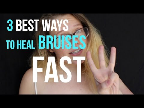 The Best Ways To Heal Bruises Fast