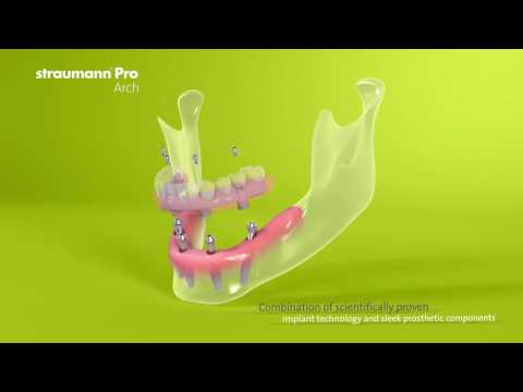 Implant Dentures Palm Beach Gardens|Juno Beach|North Palm Beach