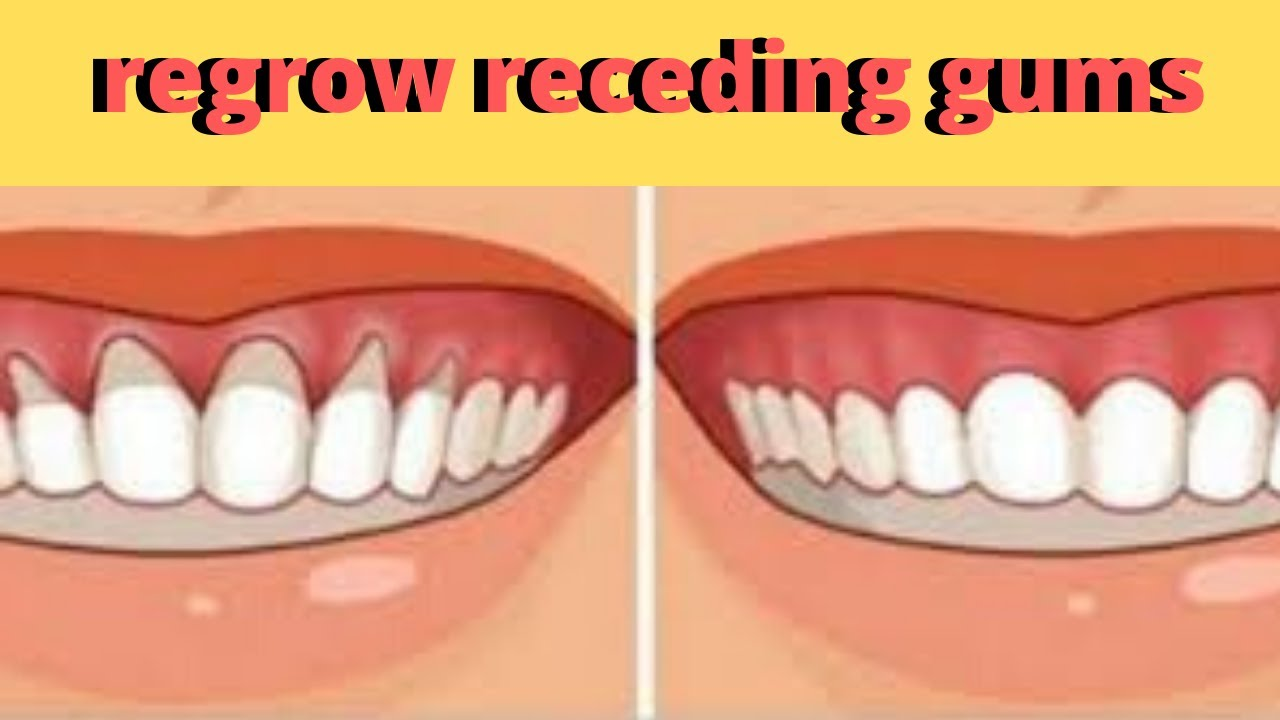 Heal Receding gums and grow it back fast- treat sensitive ...