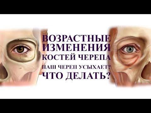 Кости черепа усыхают с возрастом? А вы знали об этом? шок, что с этим делать?
