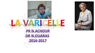 Présentation de la maladie de la  VARICELLE - Pr Achour
