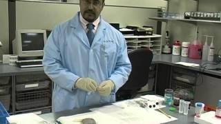 Superficial Fine Needle Aspiration Biopsy Technique, Dr. Robert Oliai PART 1
