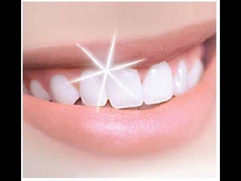 Blanchiment des dents avec peroxyde