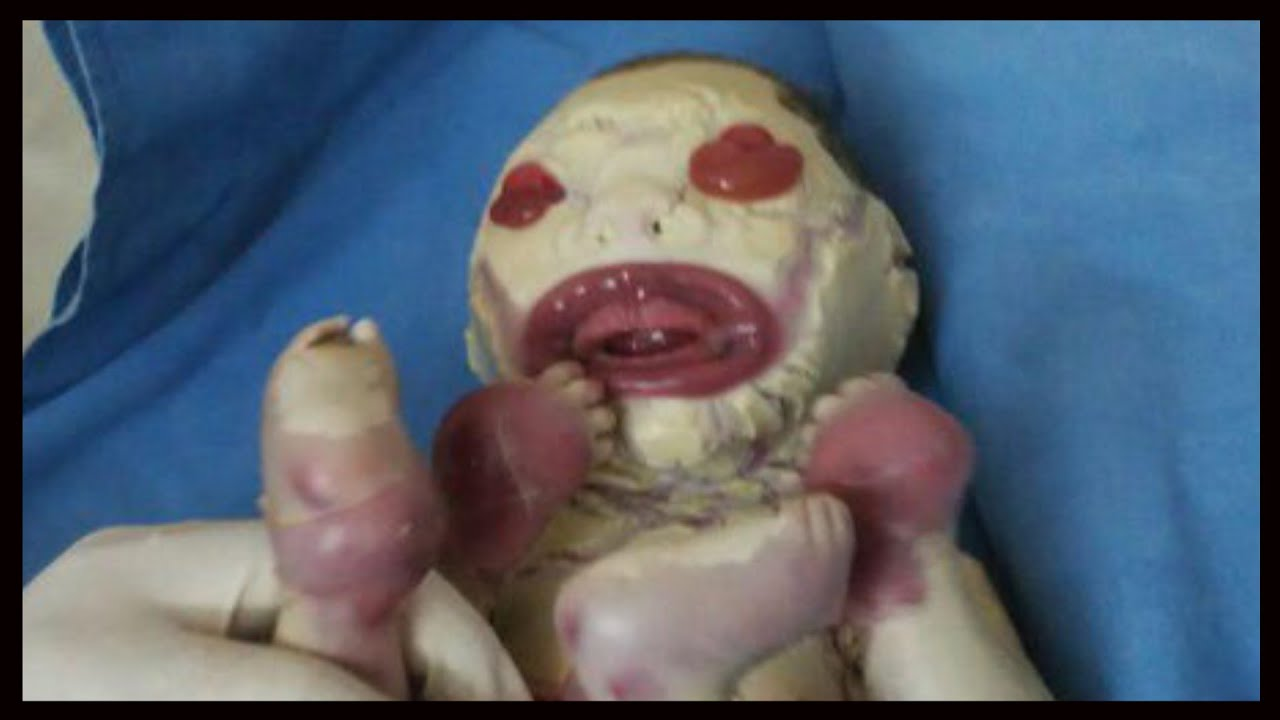 Baby Born With No Skin In India And Other Unusual Babies Youtube