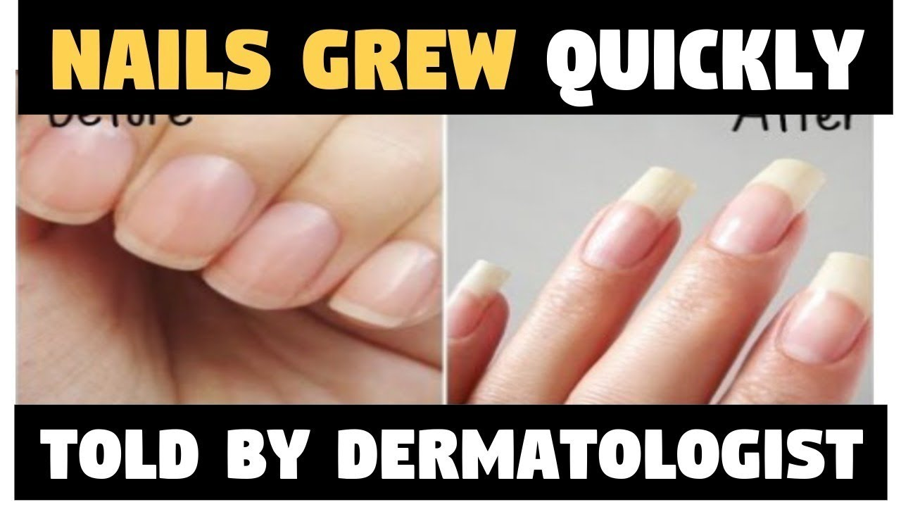 Apply These Remedies and Your Nails GROW FASTER AND STRONGER!! - YouTube