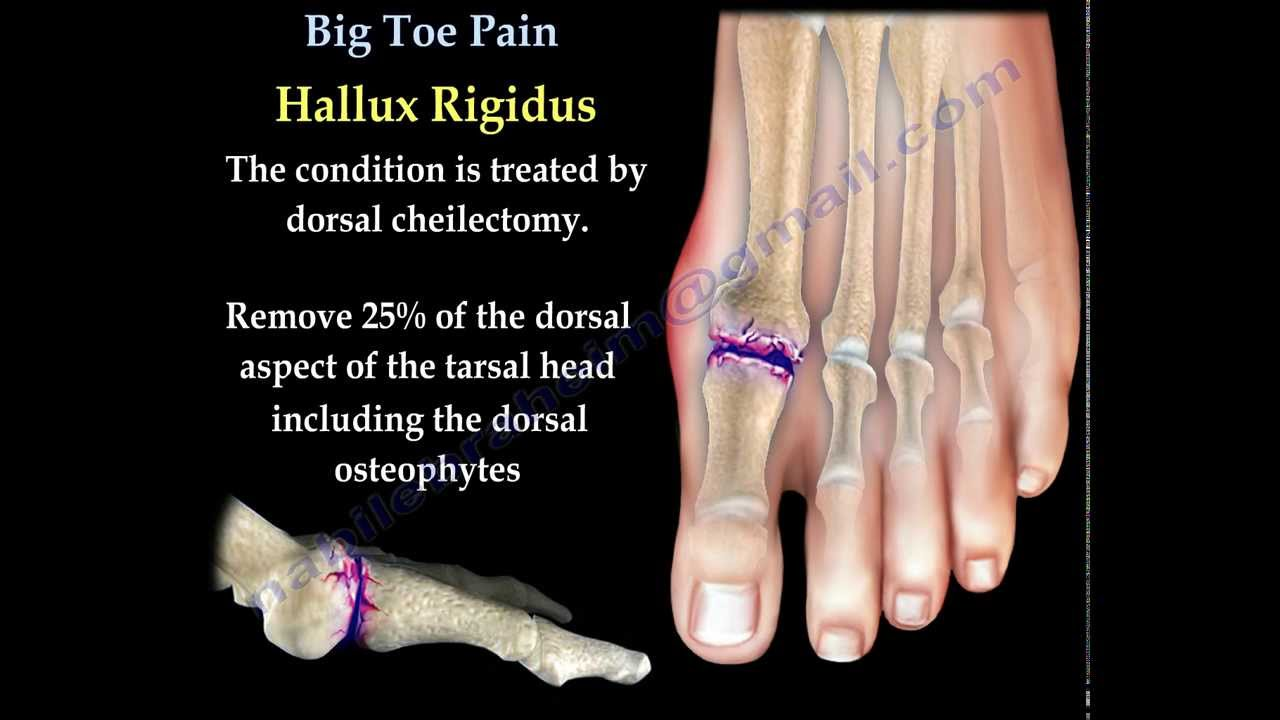 Big Toe Pain - Everything You Need To Know - Dr. Nabil Ebraheim ...