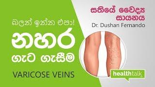 නහර ගැට ගැසීමට ප්රතිකාර නොකර ඉන්න එපා | Varicose Veins by Dr. Dushan Fernando - HealthTalk LK