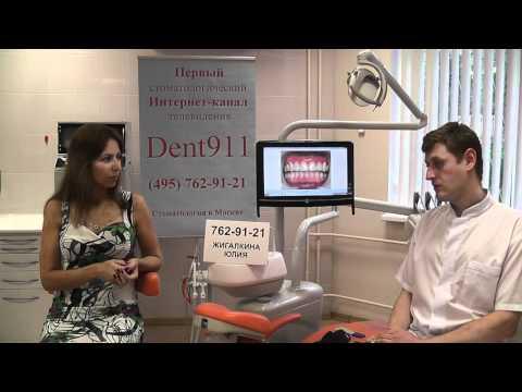 Имплантация зубов, установка зубного импланта - Зубные