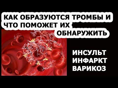 Густая кровь Инсульт Инфаркт Варикоз