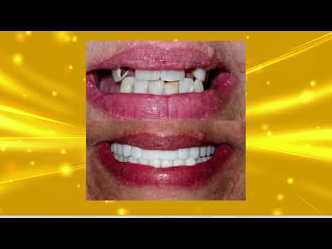 Smile Makeovers with Dr. Todd Shatkin