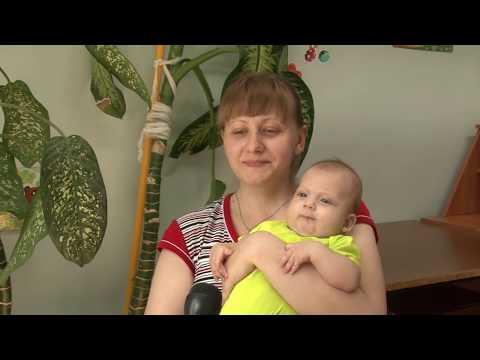 Лечение младенческих гемангиом в России.