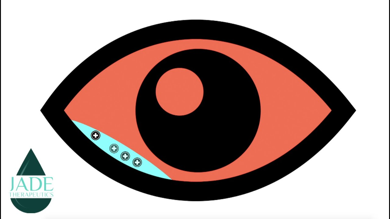 New Delivery System For Prescription Eye Drugs Biotechs Future