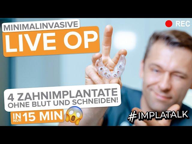 4 Implantate LIVE-OP ohne Schneiden und ohne Blut! Minimalinvasive Implantat-OP