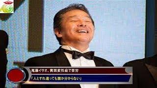尾藤イサオ、黄斑変性症で苦労「人とすれ違っても誰か分からない」 歌手...
