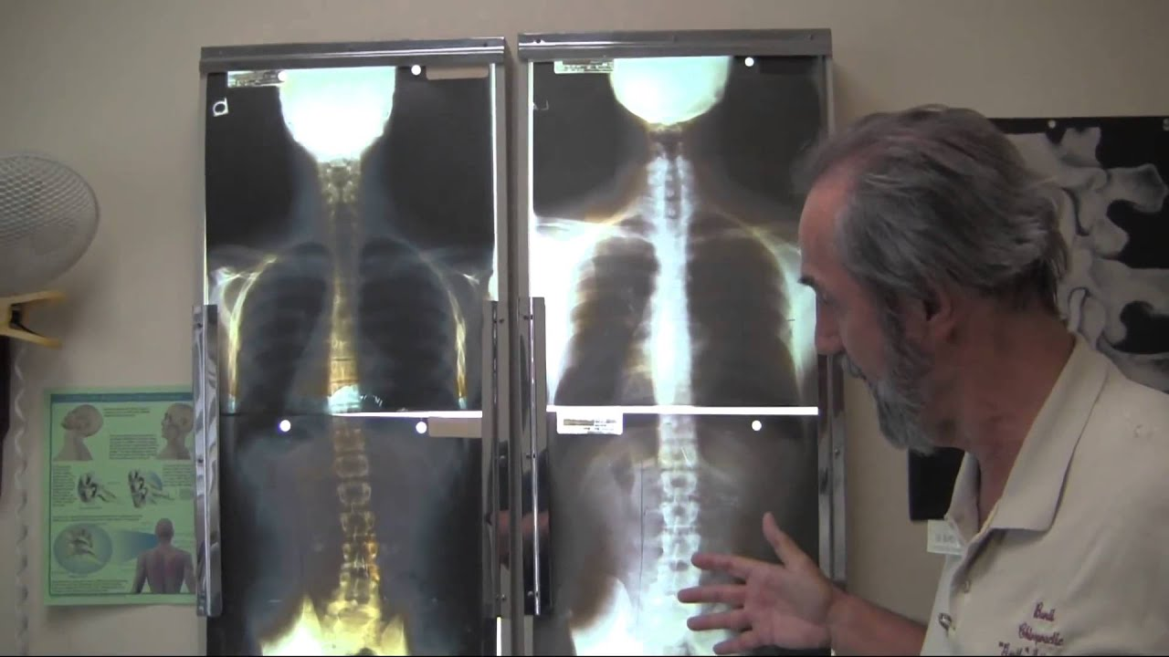 Image result for chiropractic scoliosis treatment