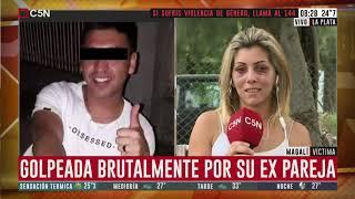 """Magalí fue desfigurada por su exnovio en La Plata: """"me pegó dos piñas y me dejó tirada en el piso"""""""