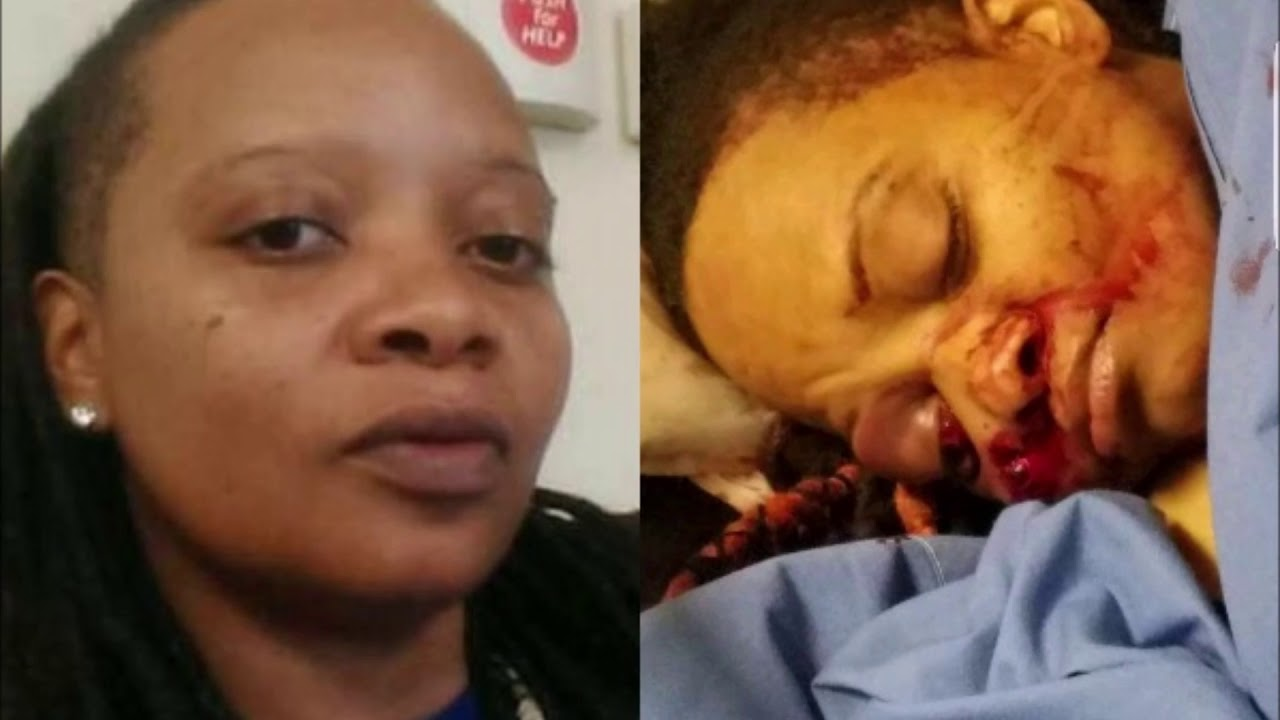 Black Army Vet Blinded In One Eye After Brutal Attack By Police