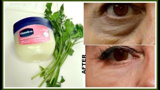 7 DAYS TO REMOVE DARK CIRCLES, EYE BAGS + EYE WRINKLES AND LINES  |Khichi Beauty