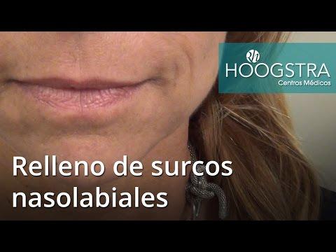 Relleno de surcos nasolabiales (16045)