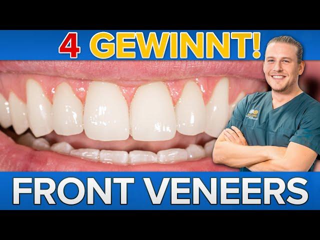 Mini Smilemakeover - 4 Frontzahn Veneers | Fluoridgeschädigte Zähne wieder schön!